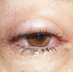Cansancio de hepatitis autoinmune