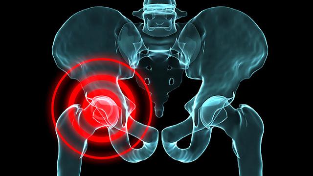 4 وصفات طبيعية مفيدة لعلاج ألم الورك