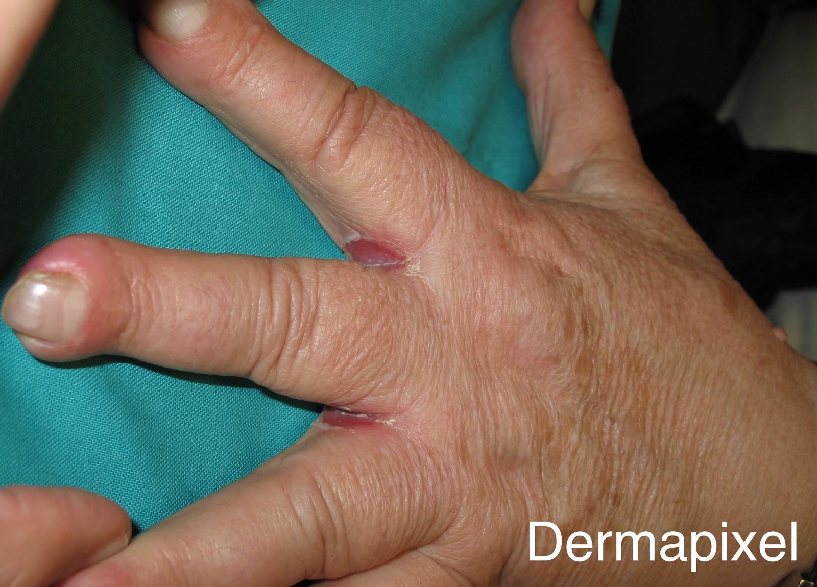 Una alergia entre los dedos