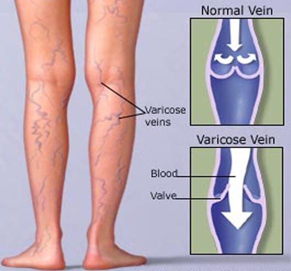 Home Remedies for Varicose VeinsVaricose Veins