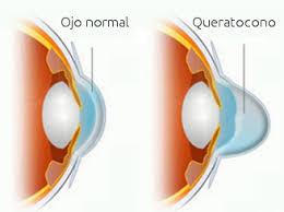 dibujo comparativo entre ojo normal y ojo con queratocono