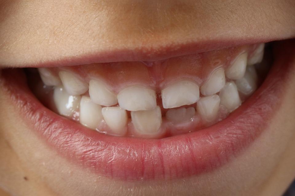Kenali 7 Penyebab Sakit Gigi Yang Harus Anda Hindari - Temukan IDE 68c088a467