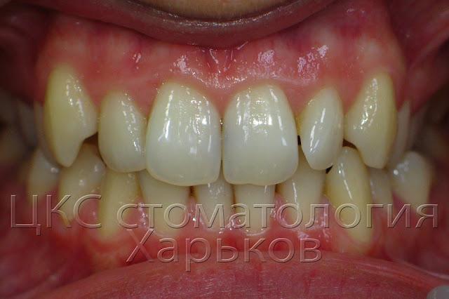 Внешний вид зубов до установки брекет системы