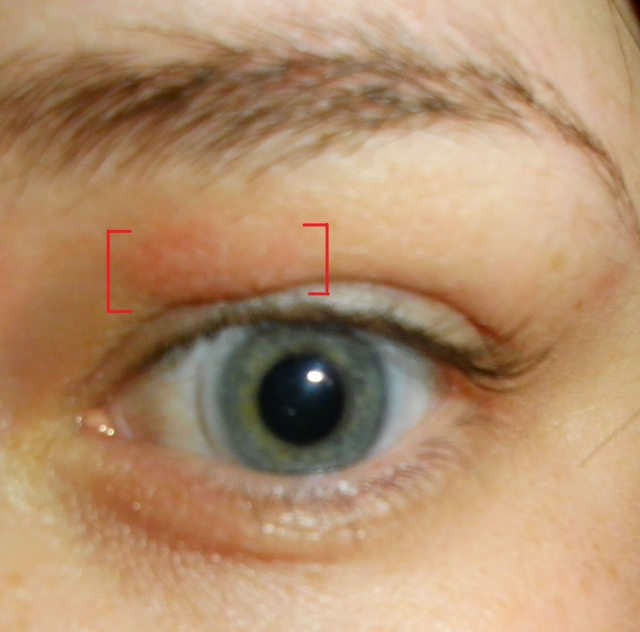 Dry Skin on the Eyelids - Like Health & Fitness