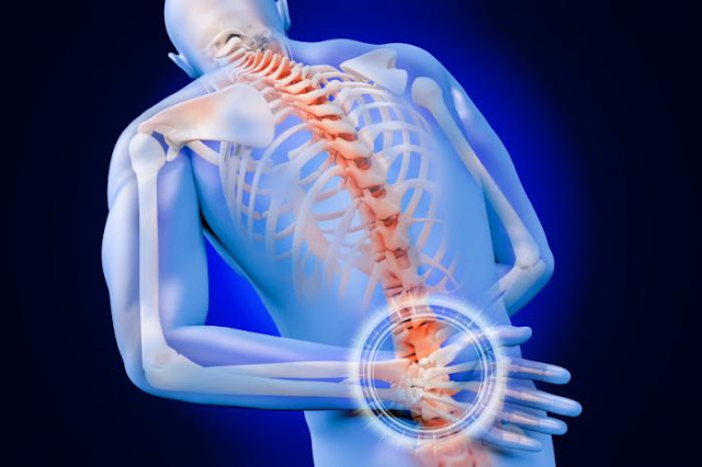 Migraine Pain & Lumbar Herniated Disc Treatment Cover Image | El Paso, TX Chiropractor