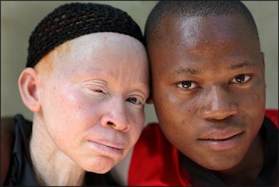 http://www.pusatmedik.org/2016/12/albinisme-definisi-gejala-penyebab-dan-pengobatan-serta-pencegahan-penyakit-albinisme-menurut-ilmu-kedokteran.html