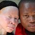 Albinisme Definisi Gejala Penyebab Dan Pengobatan serta Pencegahan Penyakit Albinisme Menurut Ilmu Kedokteran