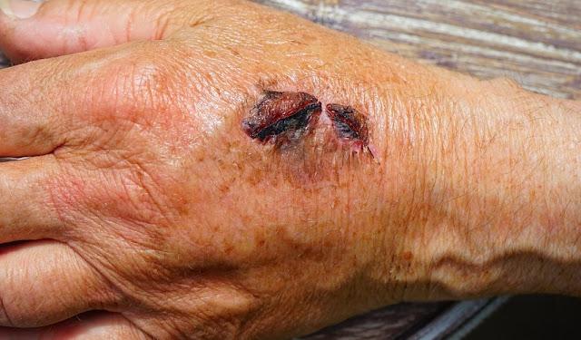 bekas luka di kulit