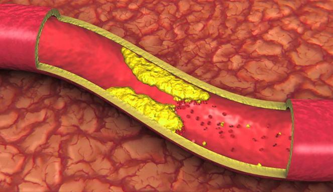 Pengerasan Pembuluh Darah
