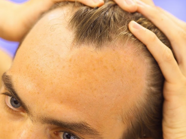 A Cure For The Age Old Problem Of Hair Loss for Man and Women