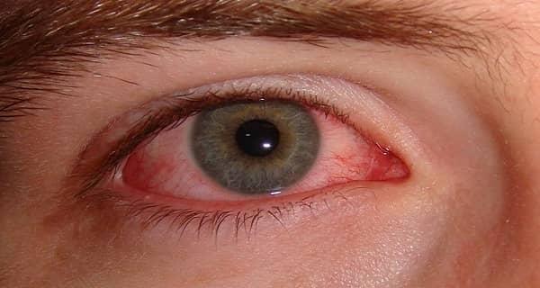 Cara Mengeluarkan Benda Asing dari Mata dengan benar, Mata Merah, Cara Mengobati Mata Merah, Sakit Mata Merah,