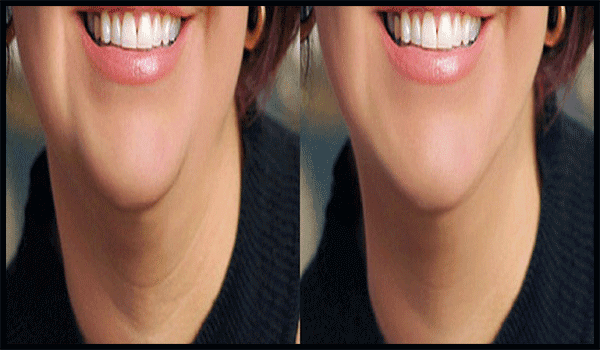 Activities and Other Natural Ways to Get Rid of Double Chin