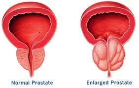 Prostatitis kékben Prostatitis 20 év alatt