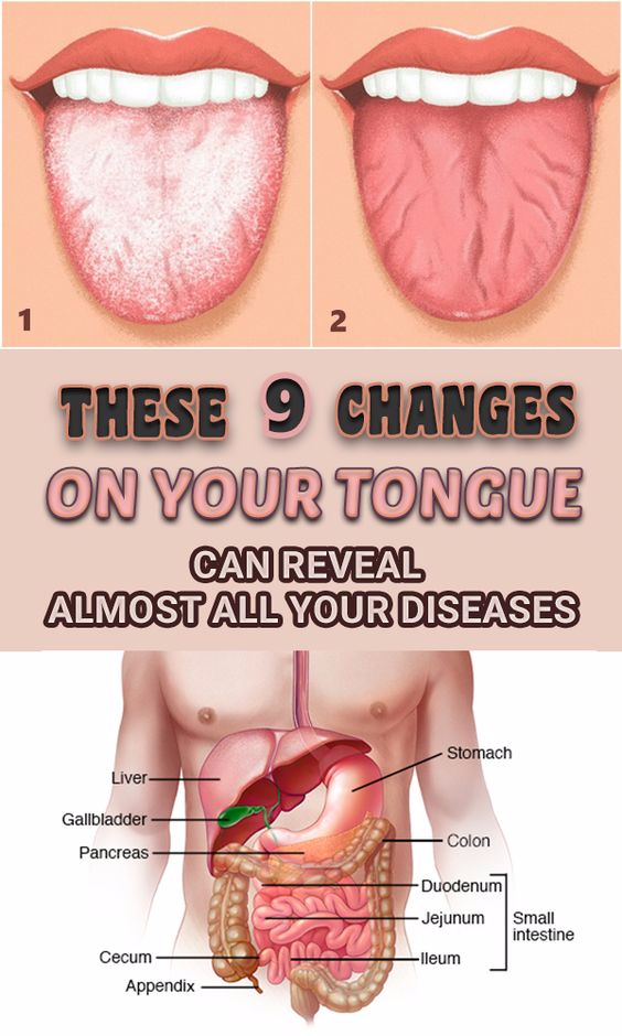 THESE 9 MODIFICATIONS ON YOUR TONGUE CAN SHOW ALL YOUR DISEASES