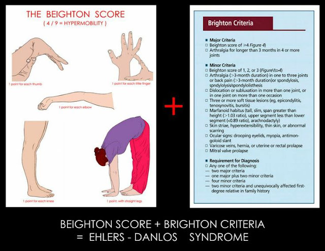 Beighton Score and Brighton Criteria: You know you have Ehlers Danlos Syndrome when...