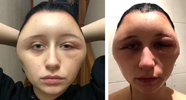 Gara-gara Alergi Cat Rambut, Bentuk Kepala Wanita Ini Berubah