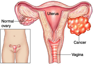 Ovarian Cancer Symptoms, Causes And Treatments