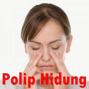 Cara Menghilangkan Polip Di Dalam Lubang Hidung