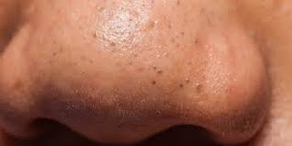 enormous-blackhead-were-popped-out