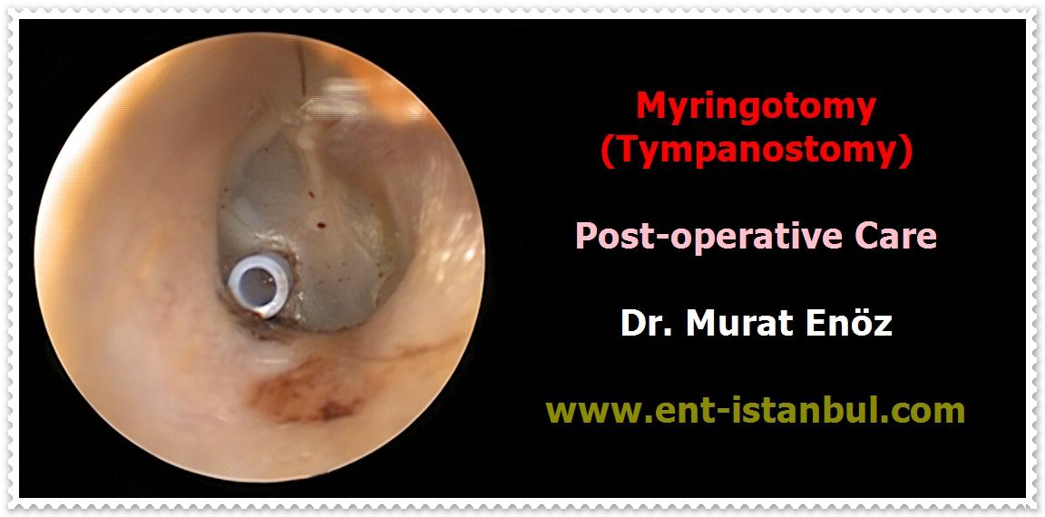 Adult myringotomy