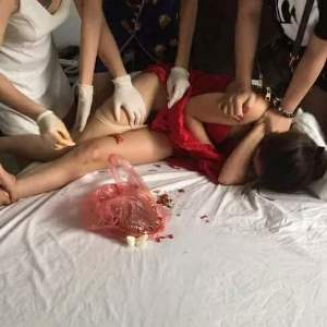 Photos: Angry Wife Applies Chili Pepper In Her Husband's Mistress Vagina