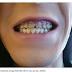 Chàng trai bị mục nát hàm răng vì nghiện nước tăng lực