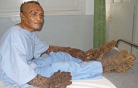 Los hombres árbol de Indnesia
