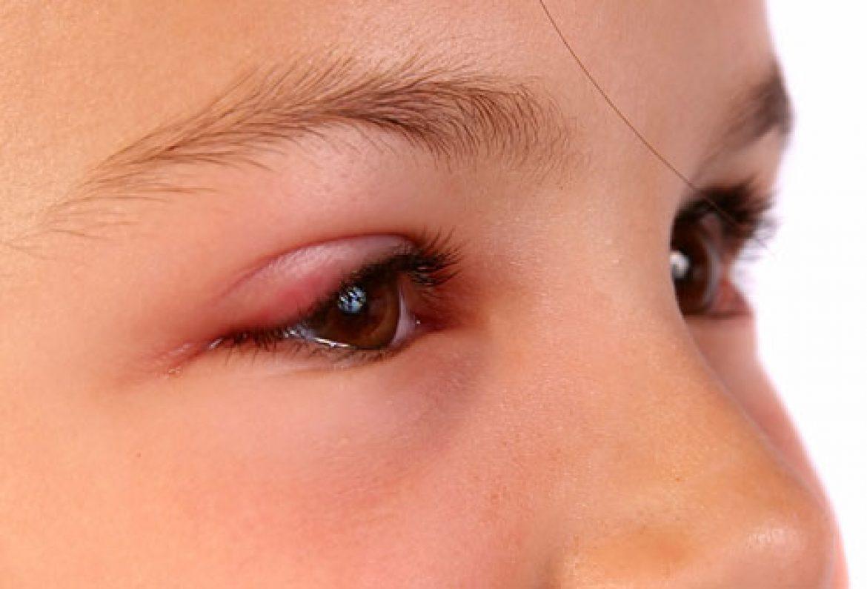 Penyebab Kelopak Mata Bengkak Saat Bangun Tidur