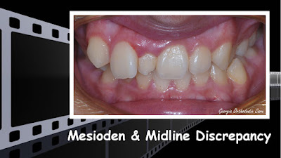 Mesioden, Midline Discrepancy, Orthodontics, orthodontists, Clear, Invisible, Braces, Invisalign, underbite,class III, face mask, non-surgery, non-extraction, crossbite, overbite, class II, crooked, spaced, crowding, teeth, severe, jaw alignment, cosmetics, implants, children, dentists, dentistry, friendly, adults, children, family, Lawrenceville, Norcross, Buford, Hamilton Mill, Dacula, Auburn, Sugar Hill, Sugar Loaf, Doraville, Chamblee, Stone Mountain, Decatur, Collins Hill, Snellville, Suwanee, Grayson, Lilburn, Duluth, Cumming, Alpharetta, Marietta, Dekalb, Gwinnett, County, Atlanta, North Georgia, GA, Georgia, 30043, 30093, affordable, Vietnamese, Spanish, weekend, Saturday, appointments, Dr. Quang Nguyen, Georgia Orthodontic Care, Nguyen Orthodontics.