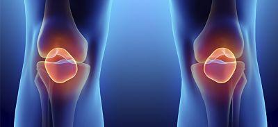artrosis-artritis