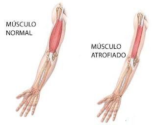 Distrofia muscular de Becker / manejo en casa / rehabilitacion