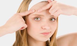 Che cos'è l'acne giovanile, quando si manifesta e come si cura