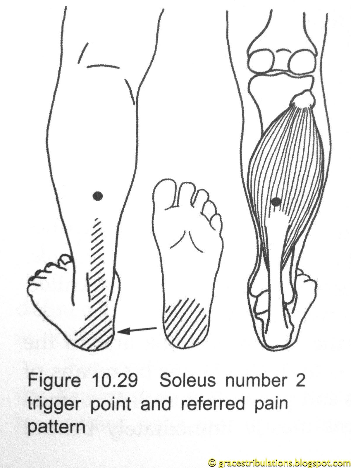 Grace S Tri Bulations Achilles Tendinitis Pain Trigger