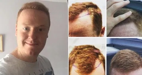 Man gets £2,000 hair transplant after woman on dating app slams him for ''going BALD''
