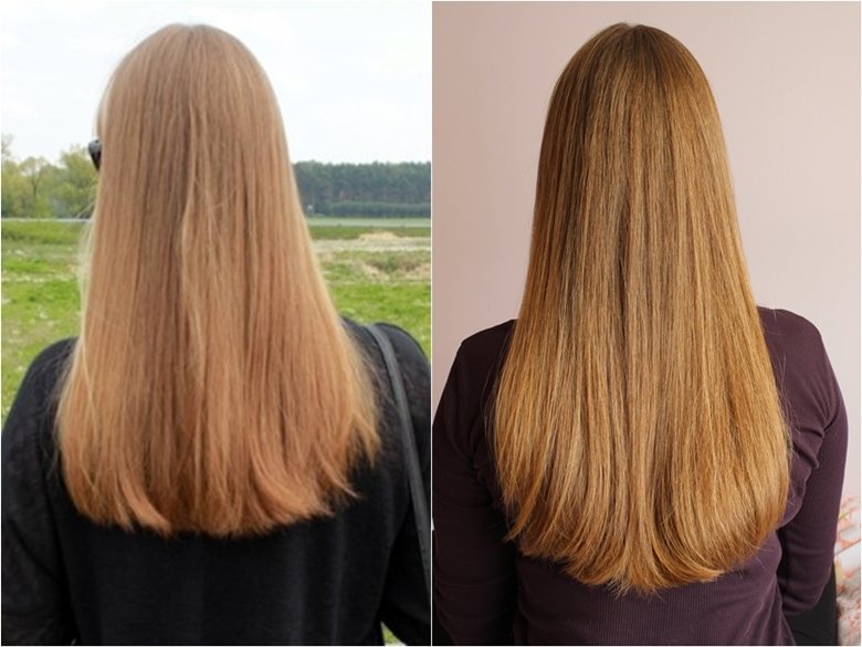 jak przyspieszyć porost włosów