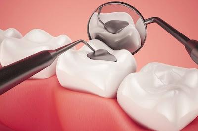trám răng giữ được bao lâu -2