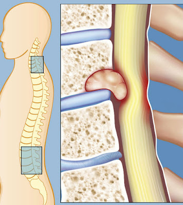 could my back pain be spine cancer,spine cancer symptoms