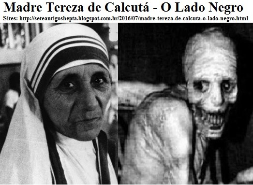 O Lado Negro De Madre Teresa De Calcutá Obscurantista Culto A