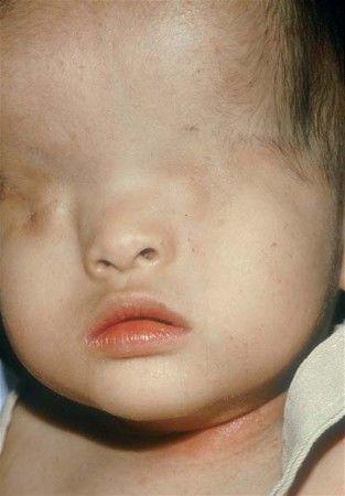 gambar manusia aneh bayi lahir tanpa mata