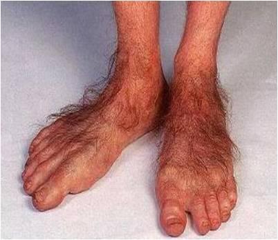 Hairy Feet Pics 117