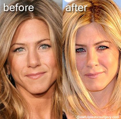 Jennifer Aniston Plastic Surgery Fact