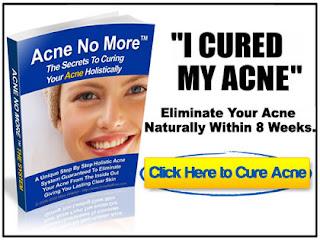 Acne No More Full Book