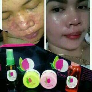 Testimoni 3 Raj Skin Care