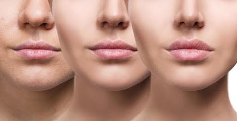 Efeitos da radiofrequência facial na sua pele