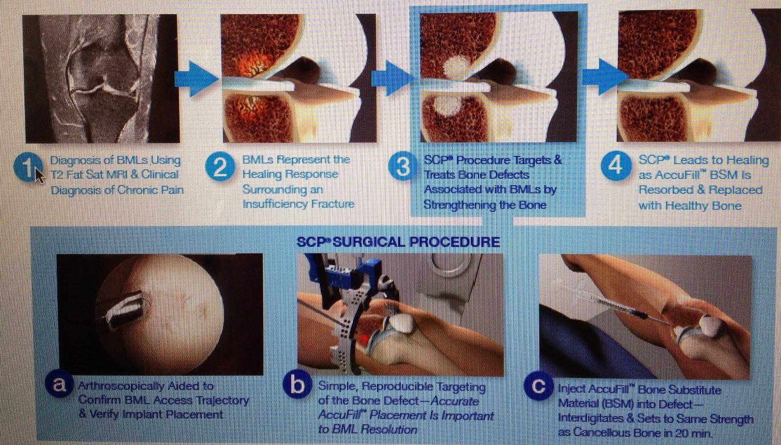 SCP Surgical Procedure Photo