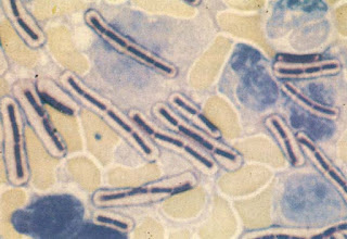 Trực khuẩn nhiệt thán (màu xanh), màng bao quanh là lớp giáp mô.