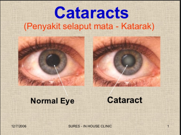 3af7bbe174d0 cataracts   Cataract surgery