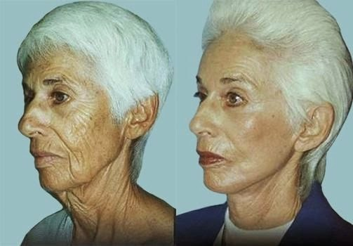 Facial Aerobics For A Sharper, Younger Face: Face And Cheek Workout