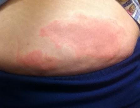 PIO allergic reaction? (pics) - Fertility Treatments