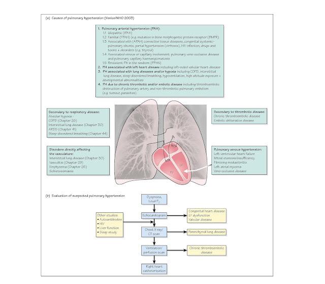 Pulmonary Hypertension, Types of pulmonary hypertension, Right heart catheterization, thromboembolic disease,